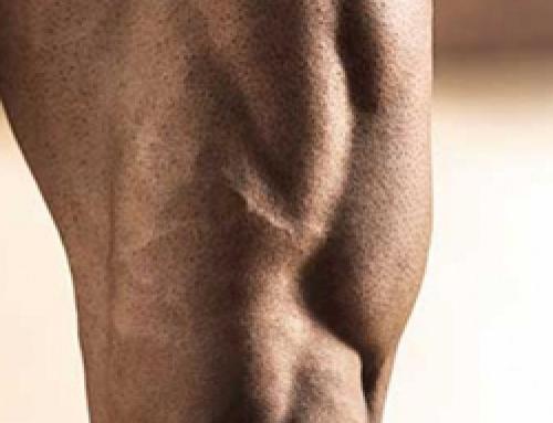 Stappen voor Massieve Quadriceps